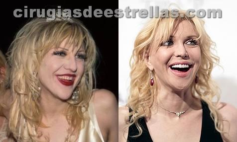 Courtney Love antes y despues