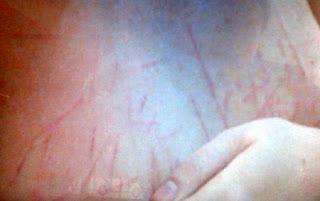Penyiksaan Manohara - Bagian dada
