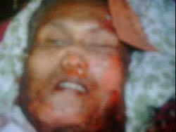 Potongan kepala seseorang yang diduga sebagai pelaku bom bunuh diri Hotel JW Marriott