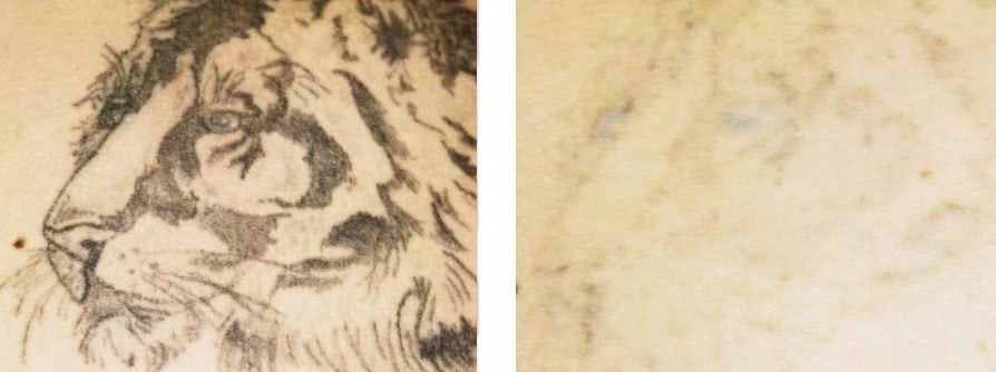 tattoos removal cost yag laser tattoo removal samoan tattoo song