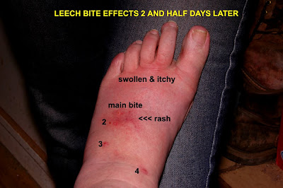 Leech Bite Infection