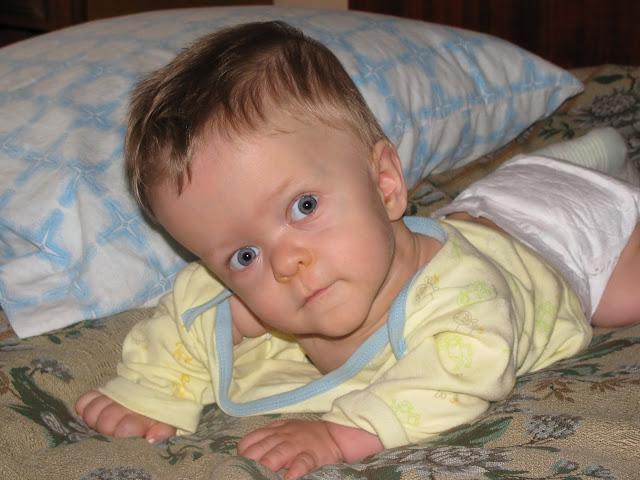 Рахит у 3 месячного ребенка фото