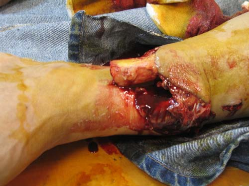Compound Fracture a fracture that penetrates the skin-3.bp.blogspot.com