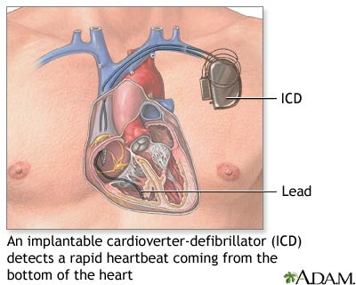 Implantable Cardioverter-Defibrillator (ICD) | For what it is used