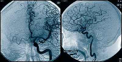 artereogramas