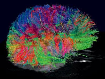 MRI cerebral