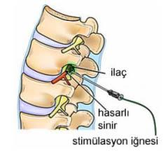 epidural steroid nedir
