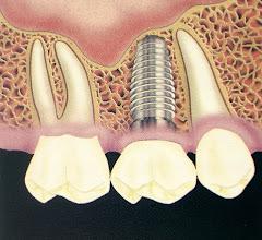 Relación Implante-Raíces Dentarias