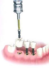 Puente atornillado sobre  tres Implantes