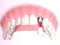 Vista de Corona sobre Implante en Boca