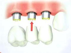 Puente cementado sobre tres Implantes