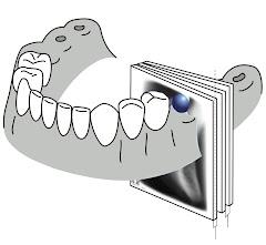 Esquemas de cortes Radiograficos en Maxilar