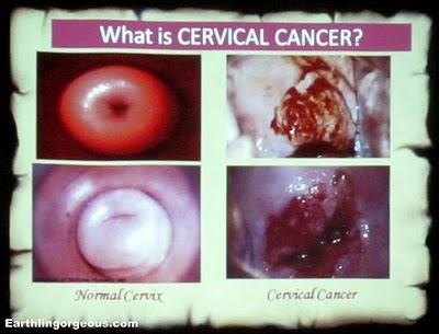 cervical cancer treatment