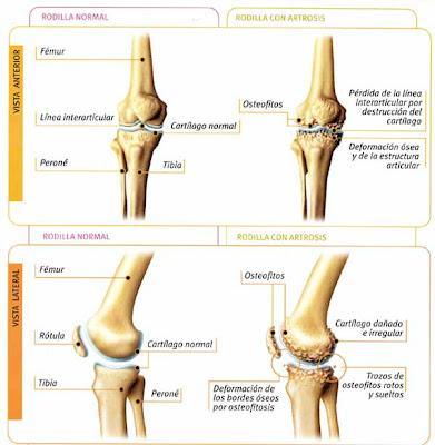 Artrosis adiscar - Dolor en la parte interior de la rodilla ...