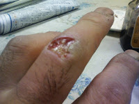 my left middle finger's injury
