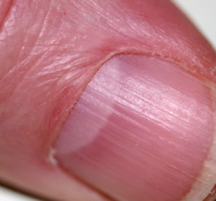 Pseudomonas Or Bacterial Infections Manifest As A Greenish Discoloration Of The Fingernail And Originate Either Underneath On Surface