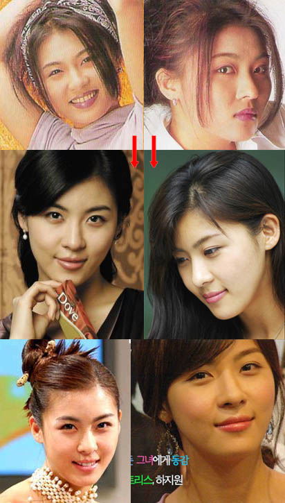 Sw33T 5 Ni3s@ TrI3nCa^__^: asian before and after plastic surgery