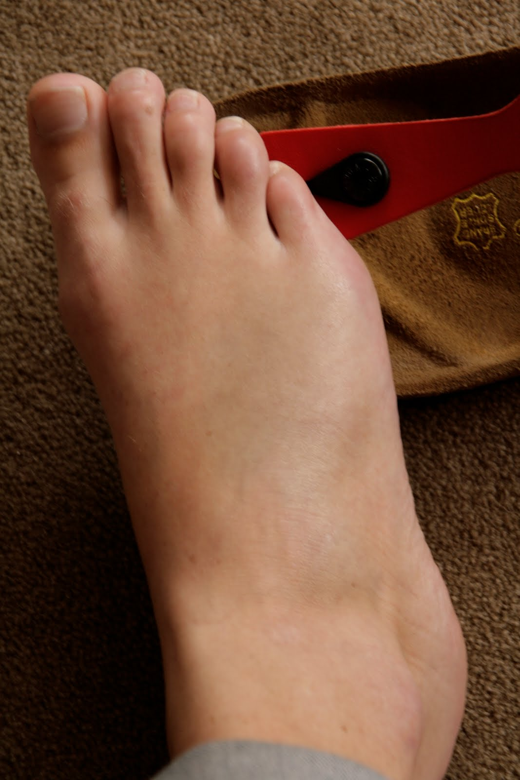 how to know if you have a broken foot