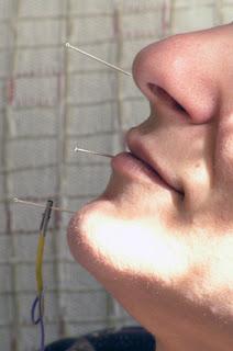 acupuntura científica medicina tradicional china