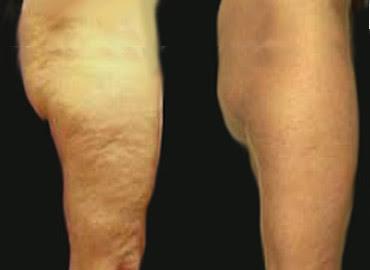 El ejercicio de la celulitis en los pies a varikoze