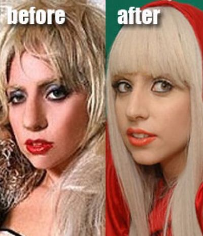 pictures of lady gaga before plastic surgery. Gaga#39;s Plastic Surgery,