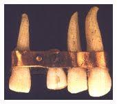 Los Fenicos en la Odontologia