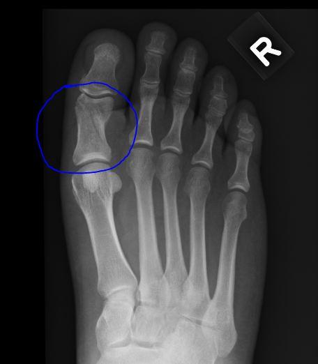 broken toe. resulted in a roken toe.