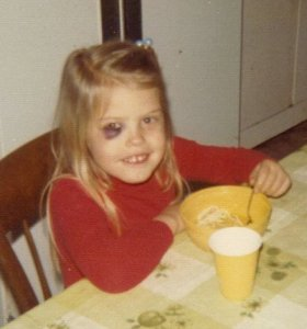 Julie's first Black Eye (Thanks Tom) 1974