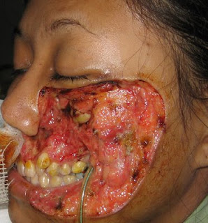 Pictures of Bad Wounds http://www.sportshawaii.com/sh/viewtopic.php?f=5&t=31529&start=0