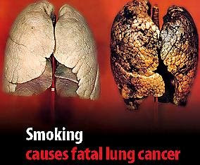 pin unhealthy lungs on pinterest