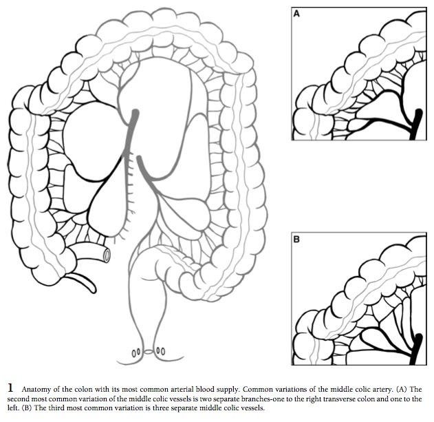 surgical operations: Open Right Hemicolectomy