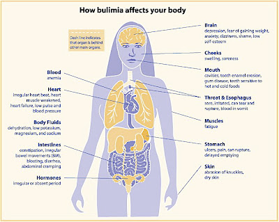 Imagenes De Bulimia