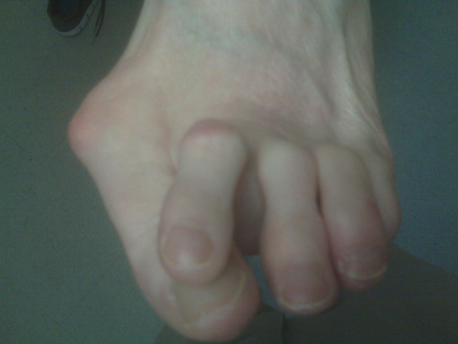Bunions Hard Skin