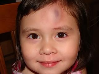 big bruise