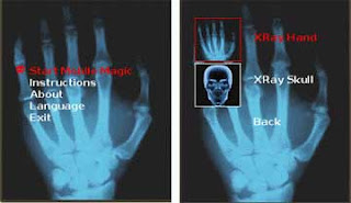 XRay Scanner picture