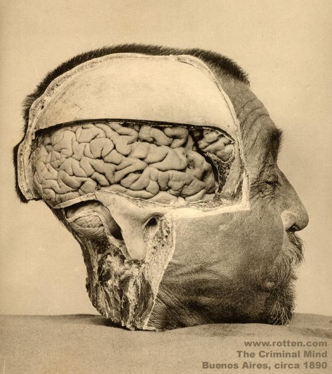 anatomy of an illness pdf