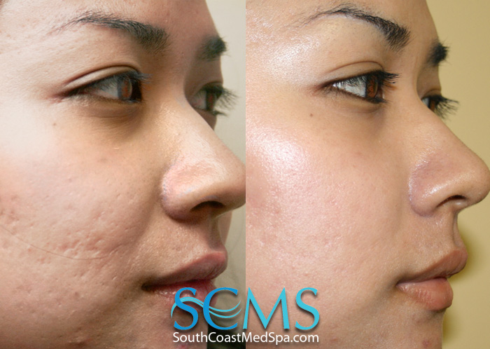 Acne Scar Treatment With Laser