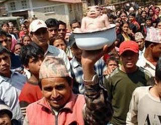 Bayi Seperti Kodok Lahir Di Nepal