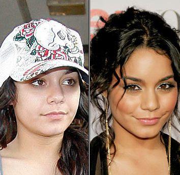 Celebrities+Without+Wearing+Makeup+Vanessa+Hudgens