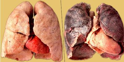 ХОЗЛ - это хронические обструктивные заболевания легких, для которых характерно...