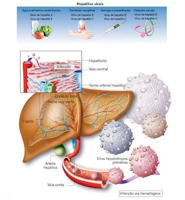 http://3.bp.blogspot.com/_AgU1JDQvr9M/Sym1JQ7egoI/AAAAAAAADm8/kt639FqdMSk/s400/hepatites.jpg