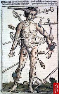 1530, Feldtbuch der Wundartzney, Hans von Gersdorff, Strasbourg