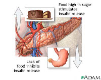 reduce insulin resistance