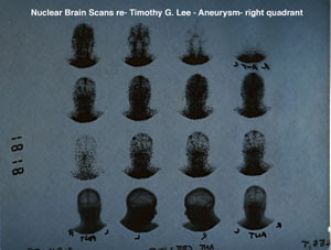 Tim's Nuclear Brain Scans