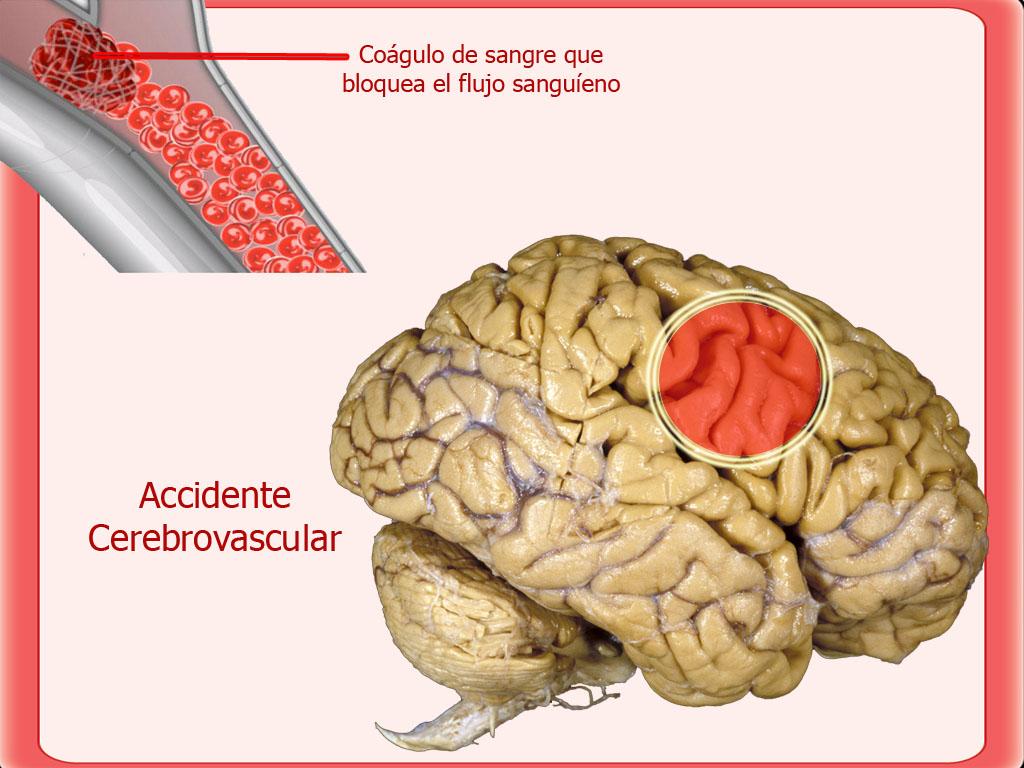 Resonancia Magnética de cerebro: 2010