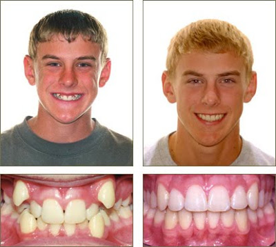 Before And After Braces Picture