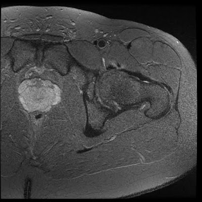 2015 08 01 Archive >> Radiology Cases: Snapping Hip Syndrome