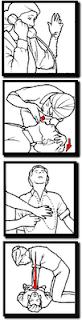 RCP o reanimacion cardiopulmonar secuencia de imágenes