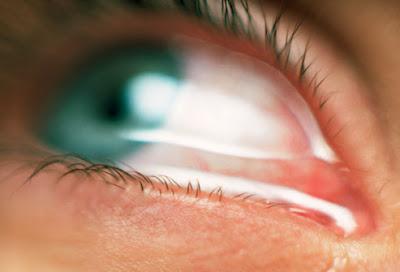 strange & wonderful eye Seen On www.coolpicturegallery.us