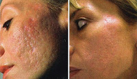 the scar solution review, natural cures for getting rid of scars